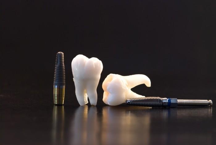 Criação do site da POP Implantes